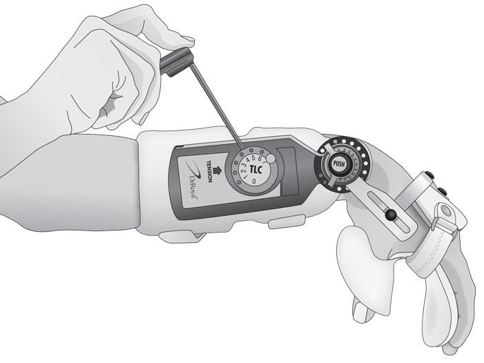 Custom-Wrist